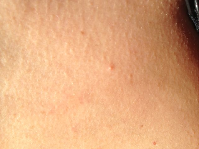 Molluscum contagiosum can look like pimples. Don't be fooled.